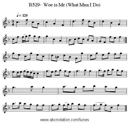 B529-  Woe is Me (What Mun I Do) - staff notation