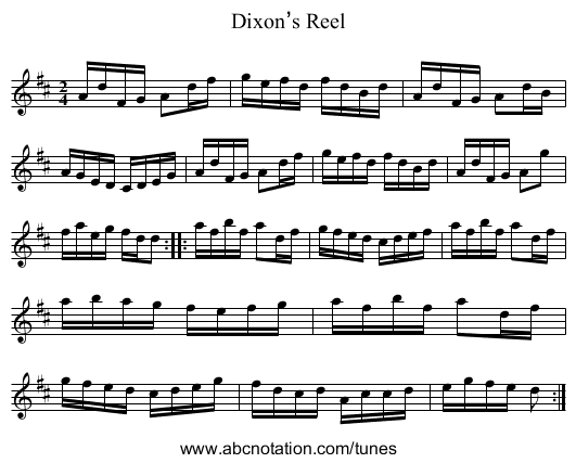 Dixon's Reel - staff notation