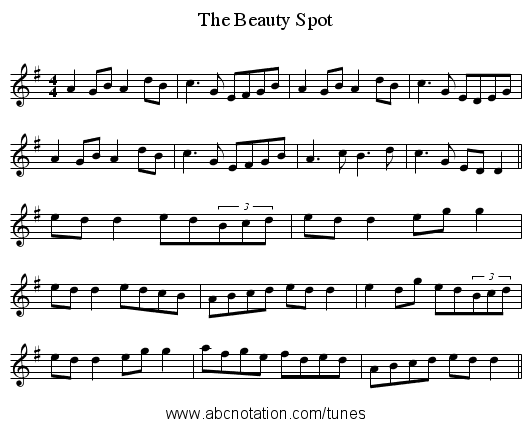 The Beauty Spot - staff notation
